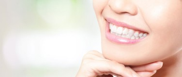 Tooth Whitening and Implants